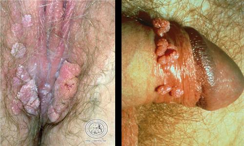 Penyakit kutil kelamin