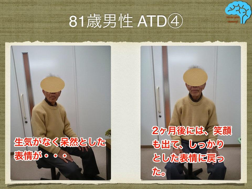 81歳男性 アルツハイマー型認知症 表情の変化