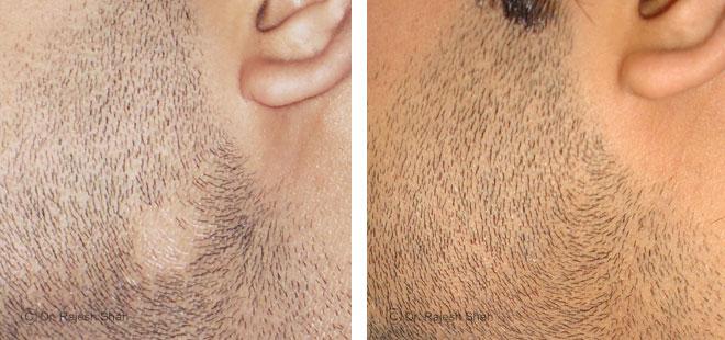 Облысение на бороде у мужчин