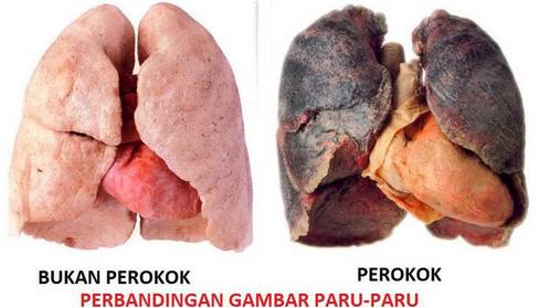 Dampak Terlalu Sering Merokok Bagi Kesehatan