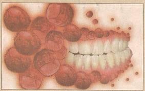 célula-tronco