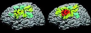 Fotografia de scanners de cérebro com área de movimento ativada, a distinguir-se a cor vermelha
