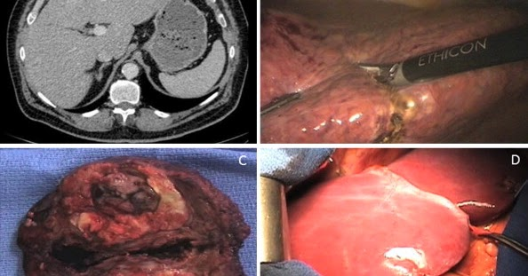 actualit u00e9s scientifiques