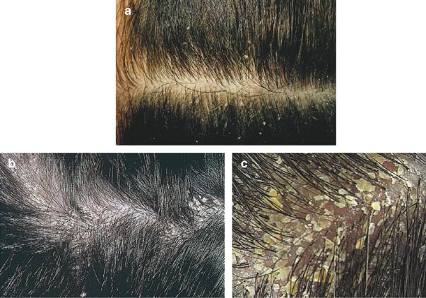 Đặc trị các thể nấm da đầu, trị hết gầu 100 do nấm gây ra xuất xứ Australia