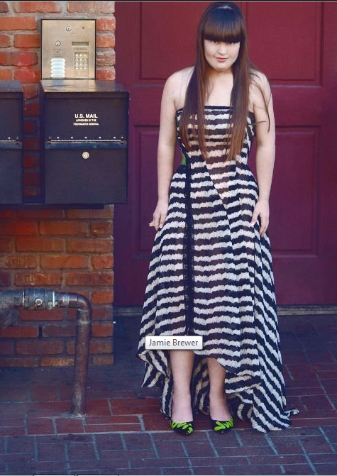 Tall young woman with Down Syndrome, long brown hair and straight bangs, wearing a long dress with black and white horizontal stripes.