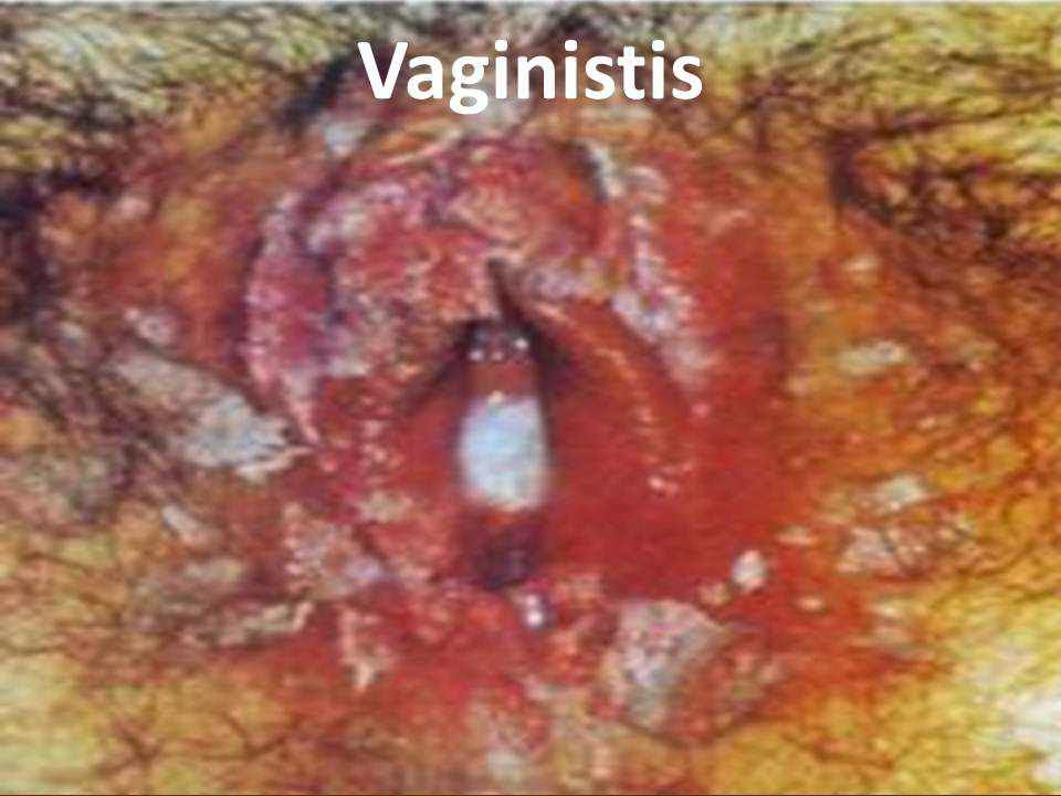 Signs of Vaginal Yeast Infection