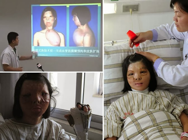 Doctors Grow Teen Girl's Face On Her Breast