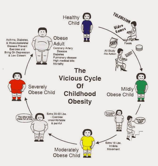 Obesitas Mengancam Anak Indonesia