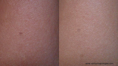 before after photos spots acne marks blemishes makeup concealer