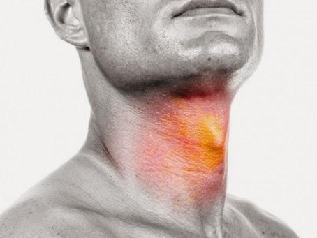 cara menyembuhkan sakit radang tenggorokan secara alami