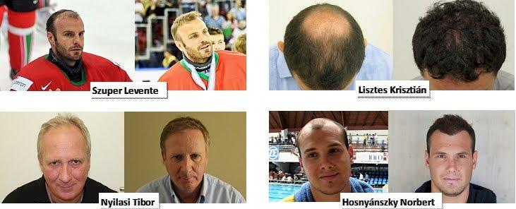 Hajbeültetés Képek (Előtte-utána)