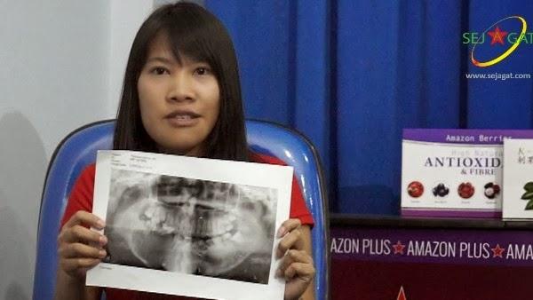Theresia Numpi, Gadis muda yang berjuang melawan kanker rahang