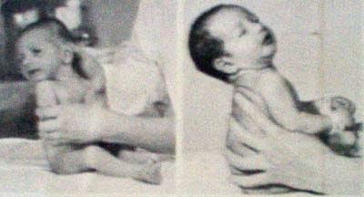 Khám lâm sàng trẻ sơ sinh - Tài liệu học tập Bác sĩ đa khoa Đại học Y Hà Nội