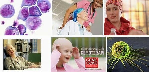 kemoterapi tedavisi nedir
