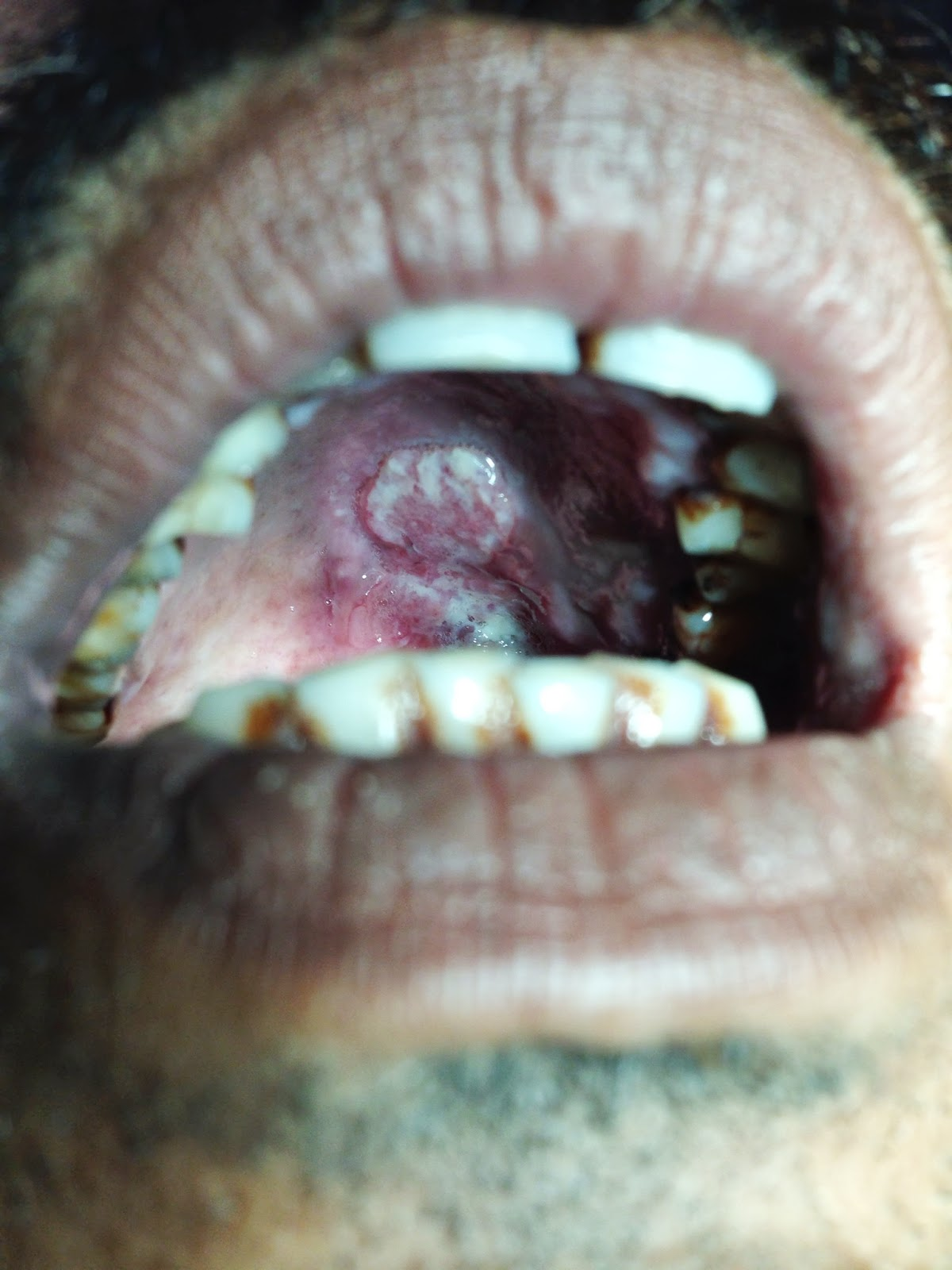 Orai India  city images : ENT Surgeon's blog: Oral Cancer in India