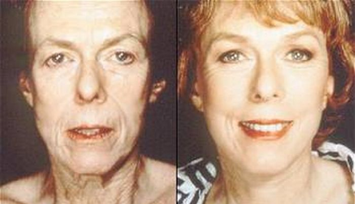 Similiar Before And After Face Exercises Keywords