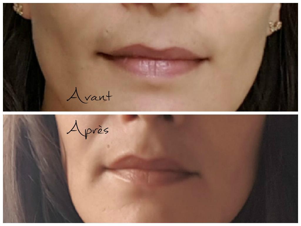 avant après la pigmentation des lèvres