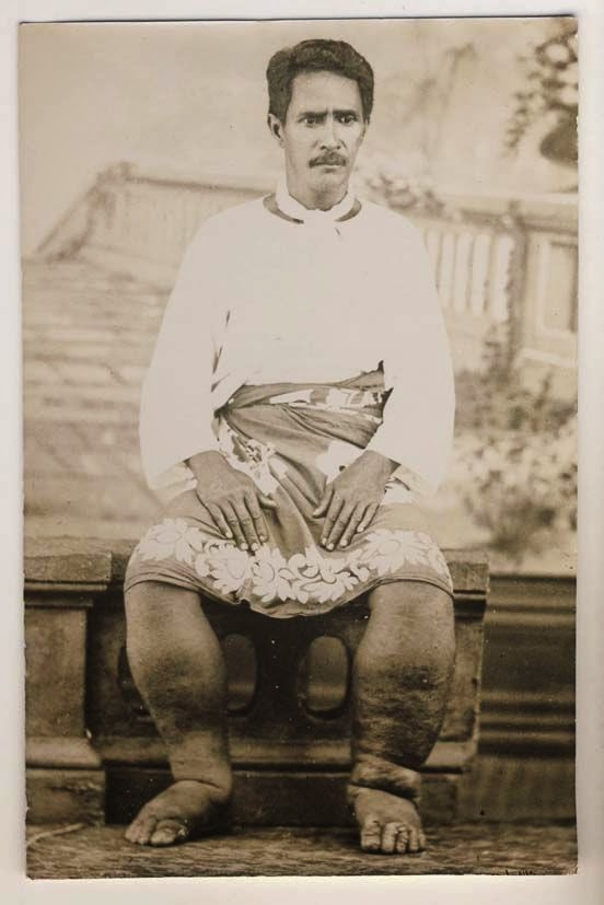 Indian man suffering from Elephantiasis - Date Unknown