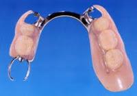 protesis combinada flexible cromo