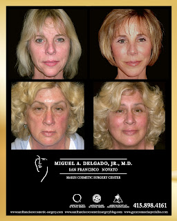 http://www.sanfranciscocosmetic-surgery.com/facelift_faq.html