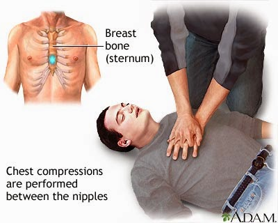 CPR Bantuan Pernafasan