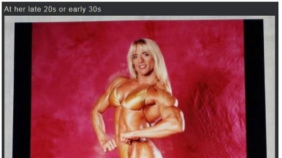 Keadaan Wajah Wanita Ini Selepas 20 Tahun Menggunakan Steroid