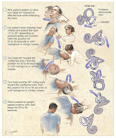 medical treatment and therapy of BPPV