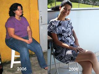 Fotos Cirurgia Bariatrica