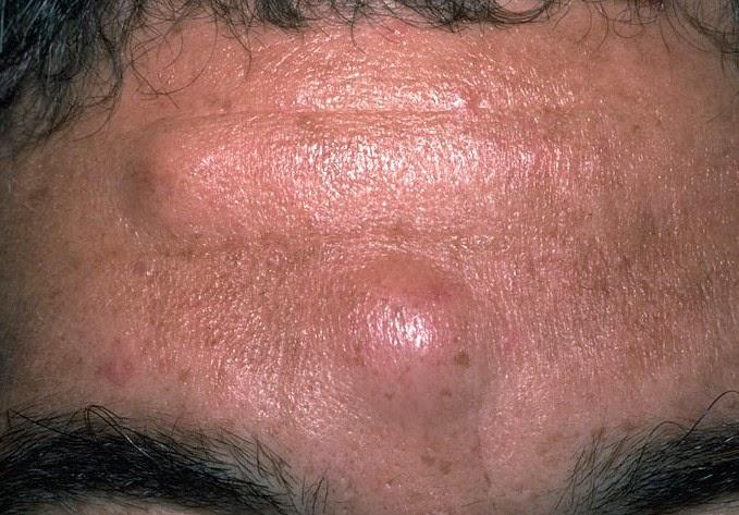 Атерома (жировик) на лице и теле.