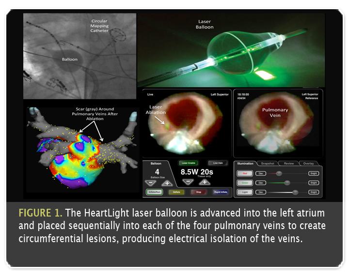Atrial Fibrillation ECG Strip