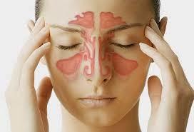 Pengobatan Penyakit Sinusitis Secara Herbal