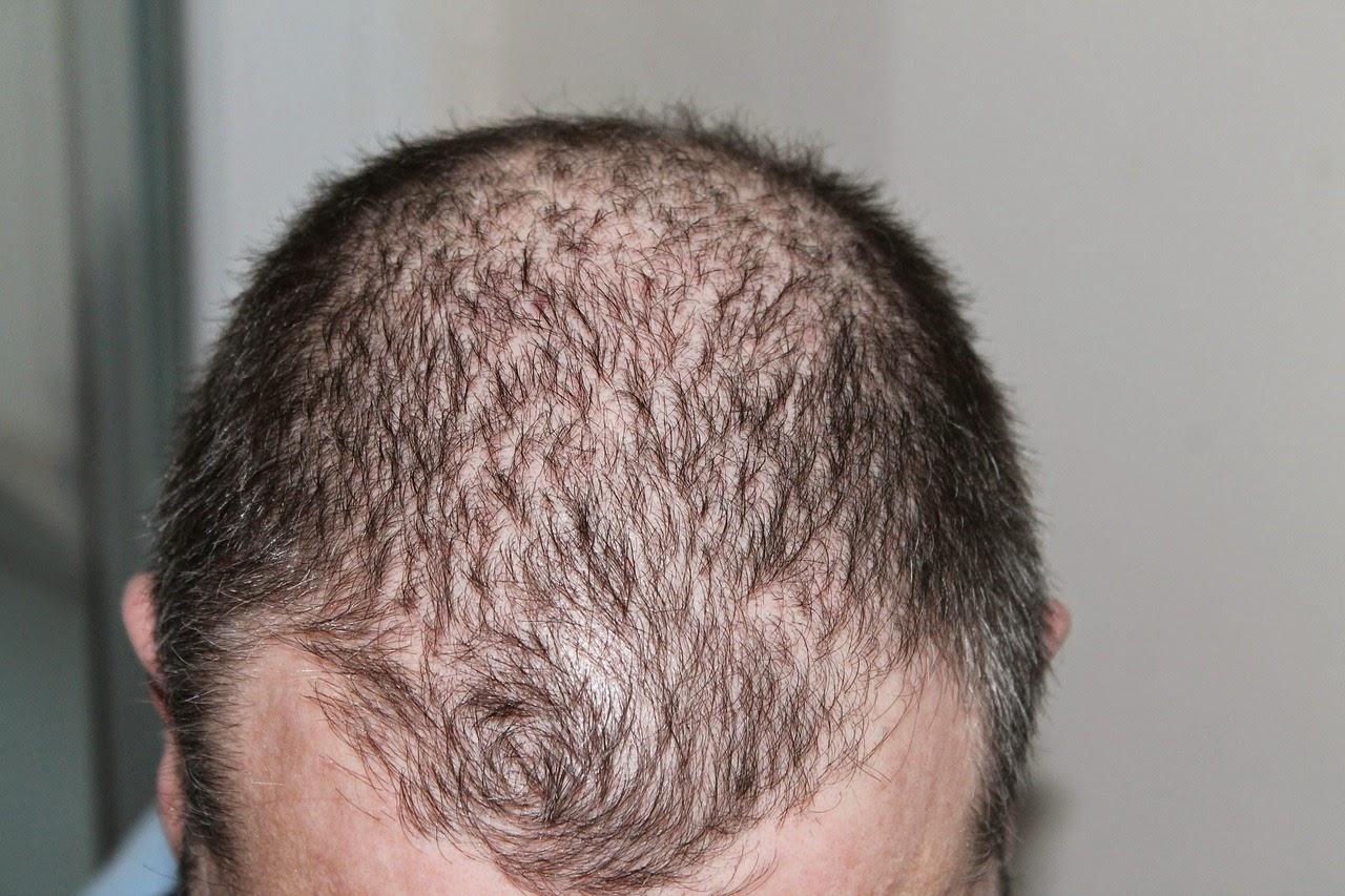 Transplante implante capilar antes homem calvo após 1ª sessão