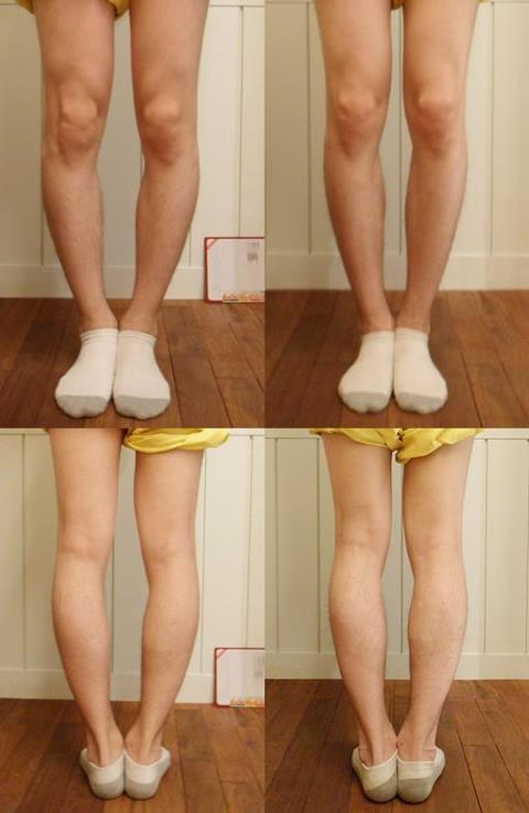 Yakson house bow legs correction bow legs treatment