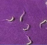 El preparado más eficaz en las pastillas de los parásitos