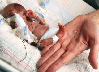 7 Bayi Ajaib Yang Pernah Lahir Di Dunia [ www.BlogApaAja.com ]