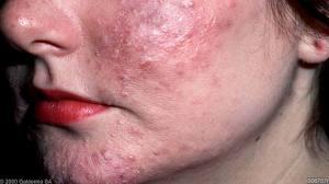 аллергия на лице фото у взрослых симптомы