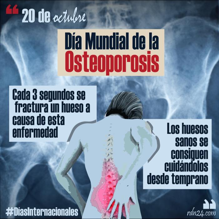 20 de octubre: Día Mundial de la Osteoporosis #DíasInternacionales
