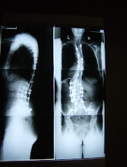 X-rays:  Side and Back