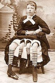 Josephene Myrtle Corbin, Gadis Berkaki Empat.jpg