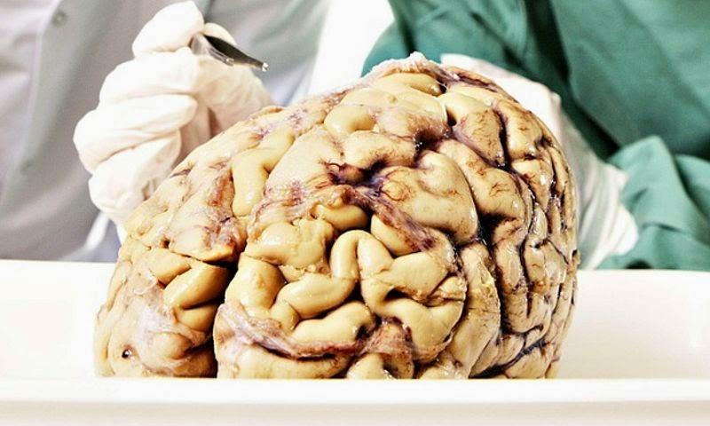 100 Otak Hilang dari Universitas di AS
