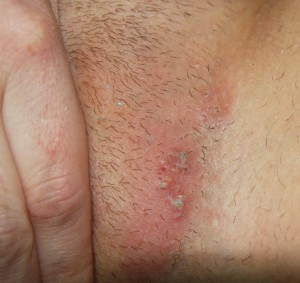 Genital Herpes Scars Pictures - Herpes Cure And Treatment