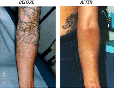 tattoo removal pain