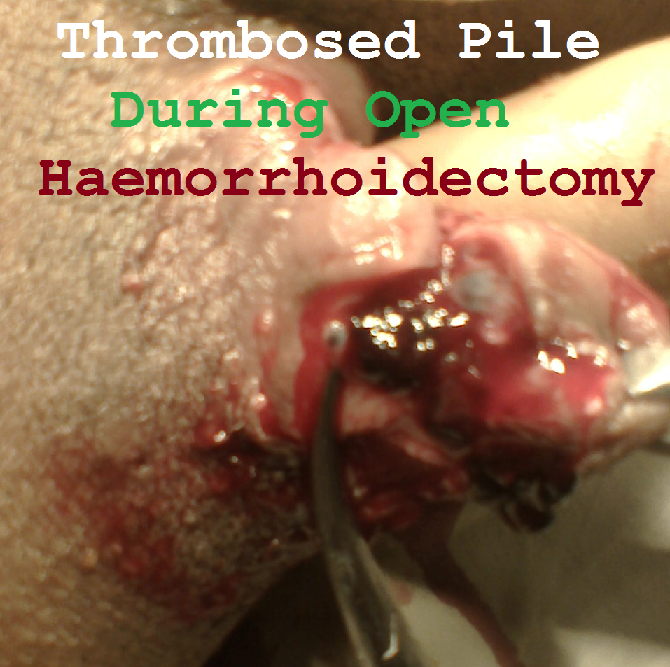 Thrombosed Pile During Open Haemorrhoidectomy