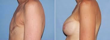 http://cancer-treatment-madurai.com/breast-cancer-ldflap-surgery.php