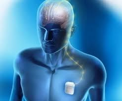 Justiça manda SUS fornecer neuroestimulador a paciente com epilepsia