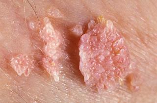 Verruga genital - vírus HPV