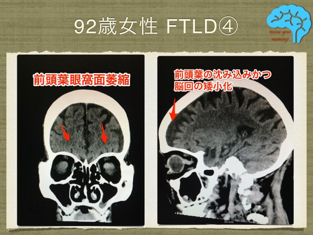 意味性認知症 92歳女性 前頭葉眼窩面萎縮