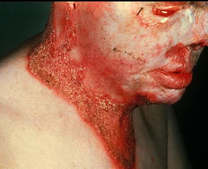 Skin Candidiasis Natural Treatment