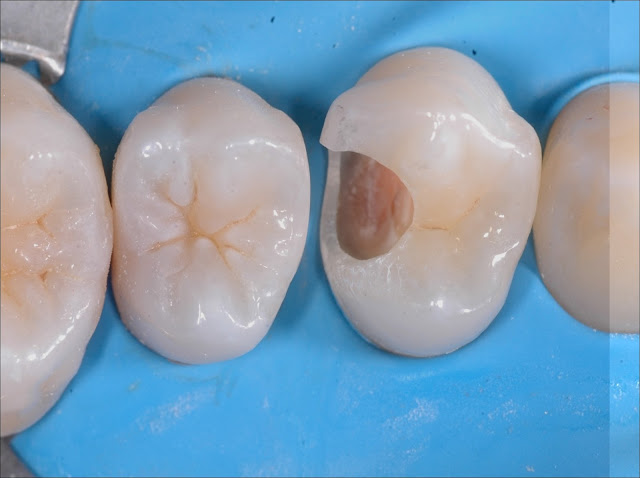 The Importance Of The Contact Point In Class Ii Restorations