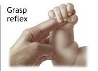 Increased moro reflex in thumb
